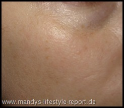 P7121037 Thumb in Im Test: Phase2 - Liftactiv Serum 10