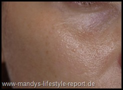 P8271135 Thumb in Im Test: Phase2 - Liftactiv Serum 10